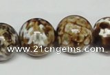 CAB614 15.5 inches 18mm round leopard skin agate beads wholesale